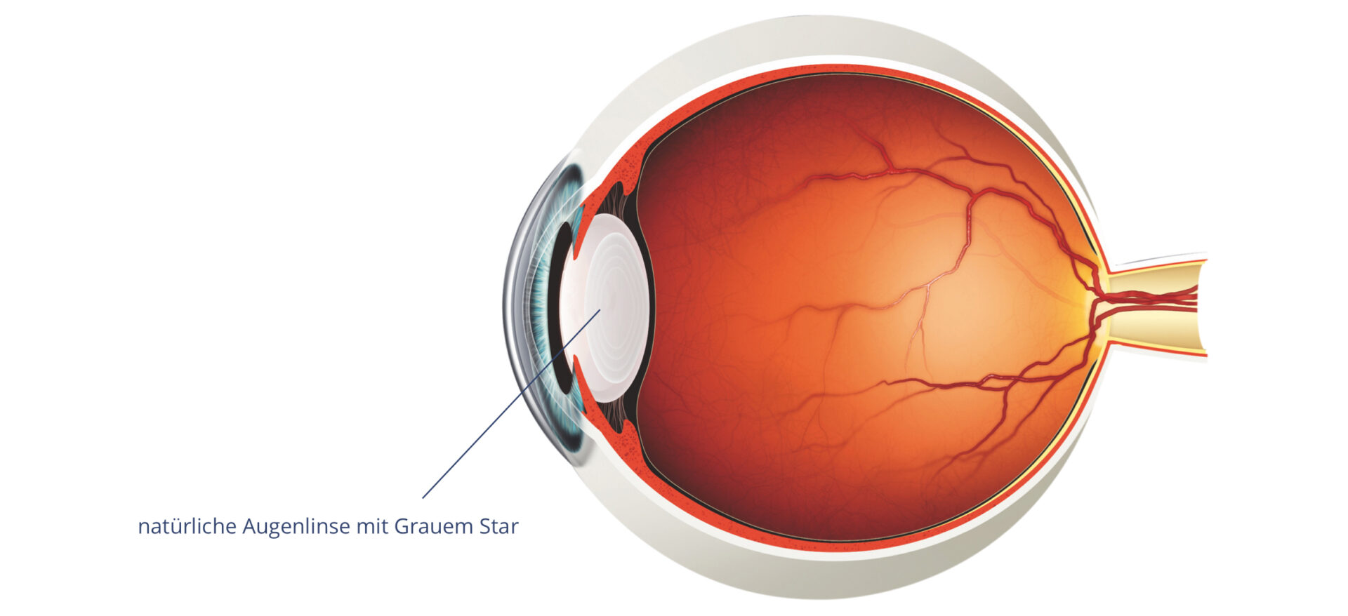 Abbildung Auge - Grauer Star